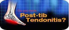 Foot Conditions Post-Tib Tendonitis