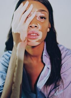 chantelle winnie proves that what makes you different makes you beautiful | read | i-D