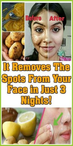 IT REMOVES ALL SPOTS ON YOUR FACE IN JUST 3 NIGHTS