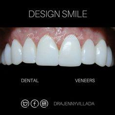 Diseño de sonrisa superior | Carillas en resina de alta estética con microparticulas de porcelana. Jennyvilladaodontología.com #composite #veneers #cosmetic #cosmeticdentistry #cosmeticdentist by drajennyvillada Our Cosmetic Dentistry Page: http://www.myimagedental.com/services/cosmetic-dentistry/ Google My Business: https://plus.google.com/ImageDentalStockton/about Our Yelp Page: http://www.yelp.com/biz/image-dental-stockton-3 Our Facebook Page: https://www.facebook.com/MyImageDental Image…