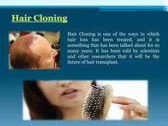 Hair Cloning, Hair Transplant, Hair Loss, Treats, Blog, Future, Sweet Like Candy, Goodies, Future Tense