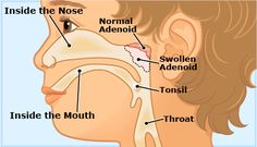 What are adenoids and why do they need removing? (What is an adenoidectomy?) – The little thins – Event planning, Personal celebration, Hosting occasions Sleep Apnea In Children, Baby Images, Lymphatic System, Body Systems, Health Club, Pediatrics, Natural Health, Event Planning, How To Remove
