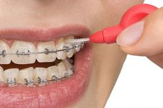 Images For > Diamond Tooth Implant