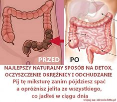 Soda – najlepszy i najtańszy lek – 13 rewelacyjnych i prostych przepisów. 11 i 12 super Wellness Tips, Health And Wellness, Health Fitness, Healthy Eating Guidelines, Healthy Tips, Healthy Foods, Natural Teething Remedies, Natural Remedies, Healthy Detox