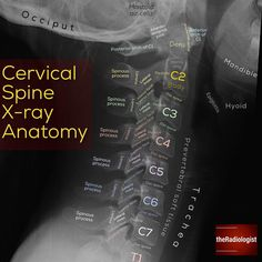Swipe left for a system on how to assess an adult lateral C-spine X-ray ⁣ ⁣ C-SPINE X-RAY⁣ 👨🏽‍💻The lateral view forms the main component of… are hard to find right out of Grad School let Us Help You Get your First Job in the Medical Industry! Radiology Student, Radiology Imaging, Medical Imaging, Medical Facts, Medical Science, Medical Information, Nursing School Tips, Nursing Tips, Nuclear Medicine