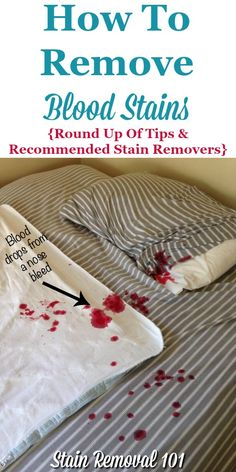 Prime 11 Best Blood Stain Removal Images Cleaning Hacks Diy Pabps2019 Chair Design Images Pabps2019Com