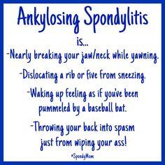 "102 Likes, 14 Comments - @spondymom on Instagram: ""True Story!Can you relate? #ankylosingspondylitis #spondylitis #ASwarrior #truestory…"""