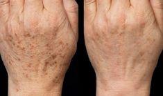 S touto maskou zabudnete na botox: domáca maska, ktorá vymaže všetky vrásky! Brown Spots On Hands, Spots On Legs, Dark Spots, Beauty Skin, Health And Beauty, Age Spot Removal, Remover Manchas, Beauty Hacks Eyelashes, Acne Scar Removal