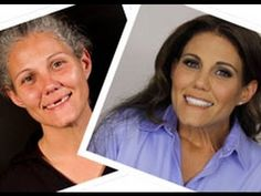 Extreme Makeover Man to Woman Wow . its amazing what you can find while searching out images for porcelain veneers and Veneers Teeth, Dental Veneers, Porcelain Veneers, Smile Makeover, Extreme Makeover, Dental Implants, Food For Thought, Image, Beauty