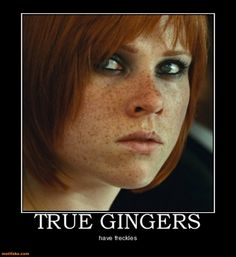 TRUE GINGERS. Freckles everywhere.