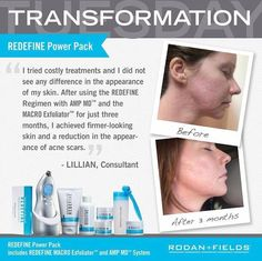 """Fellow Consultant Lillian suffered with acne scars. She said """"I tried costly treatments and did not see any difference in my skin. After using the Redefine Regimen with AMP MD and MACRO Exfoliator for just three months, I achieved firmer-looking skin and a reduction in the appearance of acne scars""""  https://iarman.myrandf.com/Shop/Product/AAJGS01"""