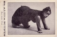 Alicia Bounds  The Bear Girl  Born in Calcutta India Bounds was originally exhibited with her mother. They were billed as Mama Bear and Bear Cub. In 1896 she was married, and had a healthy son a while later.