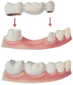 """Illustration of a traditional bridge. In this situation the tooth before and after the space is """"prepared"""". This involves reducing the tooth structure. Then the bridge if fabricated and cemented to replace the missing tooth."""