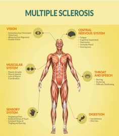 Are you at risk for Multiple Sclerosis? An infographic detailing the causes and symptoms of Multiple Sclerosis. Chronic Illness, Chronic Pain, Sensory System, Muscle Atrophy, Multiple Sclerosis Awareness, Multiple Sclerosis Medications, Muscular System, Autoimmune Disease, Invisible Illness