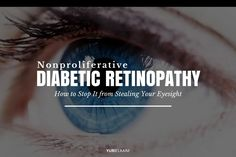 For most people who've had diabetes for 10 or more years, slowly losing your vision until you eventually can't see is a very scary – and very real – possibility. This is known as nonproliferative or proliferative diabetic retinopathy—and it's just one of