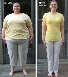 Before & After Weight Loss Success Story Photo