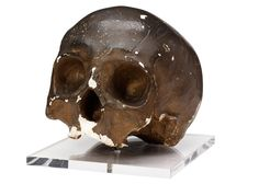 Cast of skull of Corporal John Shaw.  Plaster cast of skull of boxer and soldier Corporal John Shaw of 2nd Life Guards. At just over six foot and weighing almost fifteen stone, Shaw was an imposing figure. This Napoleonic Hercules fought with skill both in the ring and on the battlefield, and was only bested by a swarm of horsemen on the field of Waterloo.  nam.ac.uk/waterloo200