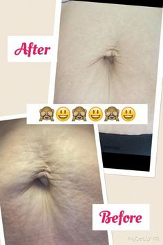 ActiDerm results from one of our lotions. actiderm.co.uk/me/natalie-fulford  Phyto Body Lotion. my cousin is soo chuffed.x