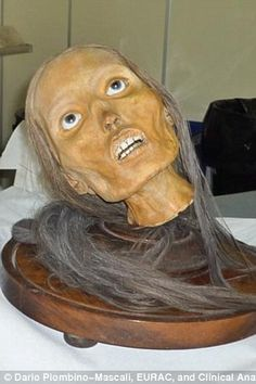 remarkable Italian mummies have been preserved almost perfectly 200 years ago for medical demonstrations.    Giovan Battista Rini stripped away the skin to show the muscles, airways and blood vessels inside the heads.    Academics have now discovered the specimens were injected with arsenic and mercury - or dipped in chemical baths to preserve them for research.