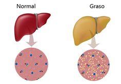 El hígado es un órgano muy importante en el cuerpo humano. El hígado ayuda a estimular y fortalecer la digestión. Por lo tanto, no es exagerado decir que limpiar el hígado significa aspecto saludable, la salud, el buen estado de ánimo y la vitalidad. Ingredientes Aceite de oliva Limón Procedi…