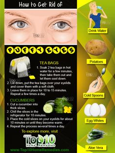 Home Remedies for Puffy Eyes: How to Reduce Swelling Prev of Waking up with puffy eyes can be really frustrating when you have a big day ahead. Puffy eyes are one of the most common beauty problems. This occurs when the eyes begin to swell for Top 10 Home Remedies, Natural Remedies, Remedies For Puffy Eyes, Natural Treatments, Skin Treatments, Dry Eyelids, Dry Eyes Causes, Hormonal Changes, Hair And Beauty