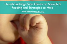 Thumb sucking and the side effects of speech and feeding (plus strategies to help)