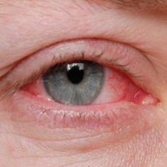Home Remedies for Conjunctivitis in Adults...