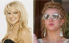 Britteny Spears Celebrities Before And After, Young Celebrities, Hollywood Celebrities, Free Makeover, Celebs Without Makeup, Celebrity Gallery, No Photoshop, Makeup Transformation, Natural Face