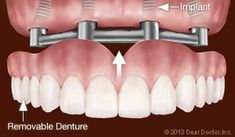 Best teeth whitening treatment full teeth implants,dental in mouth cleaning at dentist,how to keep your teeth and gums healthy bad oral smell.