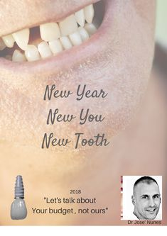 The Best Dental Implant Clinic in Perth. Dental surgery is his passion and he has spent many years mastering dental implant placements. Affordable Dental Implants, Teeth Implants, New Year New You, Dental Services, White Teeth, Let Them Talk, Perth, February, Stage