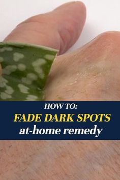 Diy Hair And Body Oil, Clear Face Tips, Health Tips, Health Care, How To Fade, Lighten Dark Spots, Bedroom Plants, Brown Spots, Healing Herbs