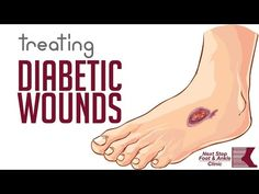 Wounds and ulcers on the feet can be extremely dangerous, especially for those with diabetes. Darren Silvester, podiatrist in Pleasanton, TX, provides st. Wound Care, Home Treatment, Wound Healing, Foot Pain, Health Articles, Feet Care, Clinic, Diabetes, Nursing