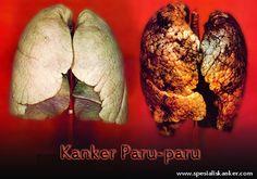 http://www.spesialiskanker.com/kanker-paru-paru/