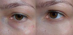 Bioretin Serum, Colorado Springs, Blog, Jitter Glitter, Eyes, Face, Skin Whitening, Blogging