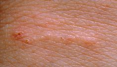 Scabies causes your skin to feel intensely itchy. The scabies mites will also leave small red blotches and lines on your skin, which are the marks caused by them burrowing into your skin.    Burrow marks can be found anywhere including folds of skin, wrists, armpits, around the waist, inside the elbow, buttocks, soles of feet, knees, shoulder blades and trunk.