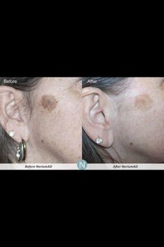 Nerium provides real results what will your results be ?