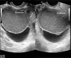 ENDOMETRIOMA Endometrioma | Radiology Reference Article | Radiopaedia.org