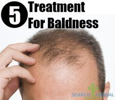 Baldness results from the loss of excessive hair from the scalp. It can make the scalp completely visible and that can be quite embarrassing. Though ...