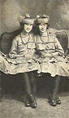 Conjoined twins aka siamese twins strange nature animal photo - Pin By Carol Dunn On Siamese Twins Pinterest Twin