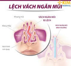 Mũi bị lệch vách ngăn gây nên nhiều phiền toái và nguy hiểm cho sức khỏe.Vậy điều trị khắc phục như thế nào hiệu quả để không gây nguy hiểm về sau