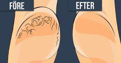 Spruckna hälar är varken skönt eller särskilt snyggt. Tyvärr är det ett vanligt problem som drabbar många – men det finns smarta metoder för att mjuka upp fötterna. Ett sådant husmorsknep tänkte jag tipsa om nu.