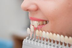 We offers you dental services & treatment like; laser dentistry, dental surgery, dental jewelry, dental implants, teeth whitening products by best dentist in Indore. Veneers Teeth, Dental Veneers, Dental Implants, Dental Hygienist, Dental Health, Dental Care, Smile Dental, Health Care