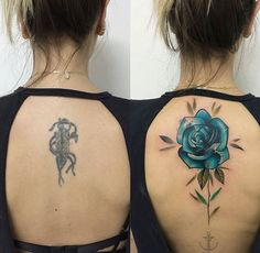 Flower Cover Up Tattoos, Rose Tattoo Cover Up, Blue Flower Tattoos, Scar Cover Up, Rose Tattoos, Body Art Tattoos, Cover Up Tattoos For Women, Leg Tattoos Women, Back Tattoo Women