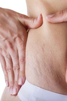 Retrouver son corps après la grossesse : ce qui marche !