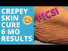 HOW TO FIX CREPEY SKIN NATURALLY - YouTube Beauty Skin, Health And Beauty, Creepy Skin, Home Health Remedies, Face Exercises, Ways To Stay Healthy, Derma Roller, Skin Treatments, Skin Care Tips
