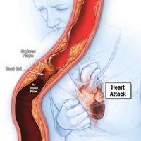 Ignoring chest pain can be fatal. There are some clues to let you know whether the pain is from heartburn or a heart attack, but always err on the side of caution.