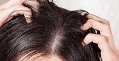 50 Brilliant Uses For Listerine- Banish Dandruff Say goodbye to dandruff. Massage the mouthwash into your scalp, then rinse it out with your usual shampoo. How To Remove Dandruff, Getting Rid Of Dandruff, Huile Tea Tree, Hair Fall Remedy, Home Remedies For Dandruff, Hair Dandruff, Itchy Scalp, Grow Hair, Get Skinny