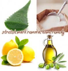 Visit our site http://laserstretchmarkremovalguide.net for more information on Laser Stretch Mark Removal.Laser stretch mark removal is a quick and simple way to get rid of stretch mark scars completely. Laser treatment offers a much faster and pain-free way to take out stretch marks completely. If you have large or deep marks or scars laser treatment might be the right method for you.