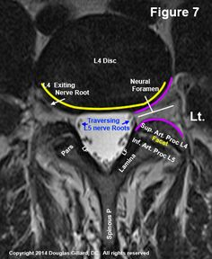 MRI Reading – Let Me Teach You