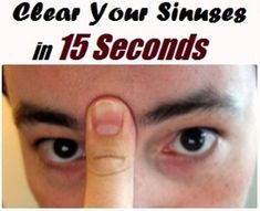 Blocked Sinuses (Nasal Congestion – medical) is the blockage of the nasal passages normally due to membranes lining the nose becoming swollen from inflamed blood vessels. It is also known as nasal blockage, nasal obstruction, blocked nose, stuffy nose, or plugged nose.Continue reading...